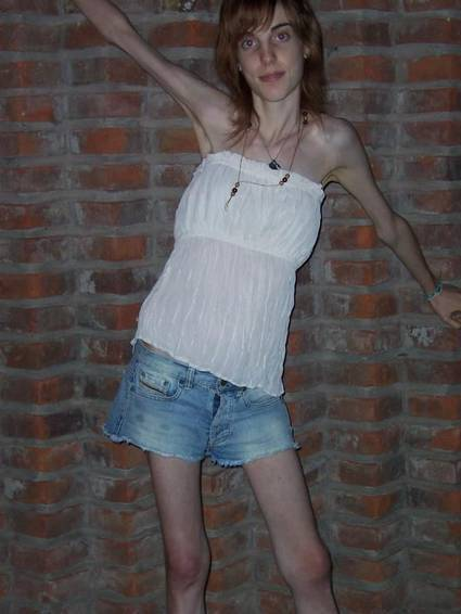 anorexicas imagenes